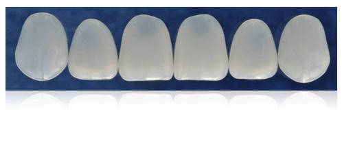 Компониры. Реставрация зубов